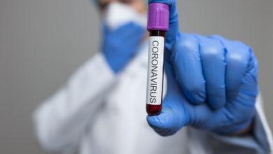 Photo of Қазақстанда бірінші коронавирус жұқтыру дерегі тіркелді